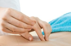 Image of acupuncture North Sydney being practiced