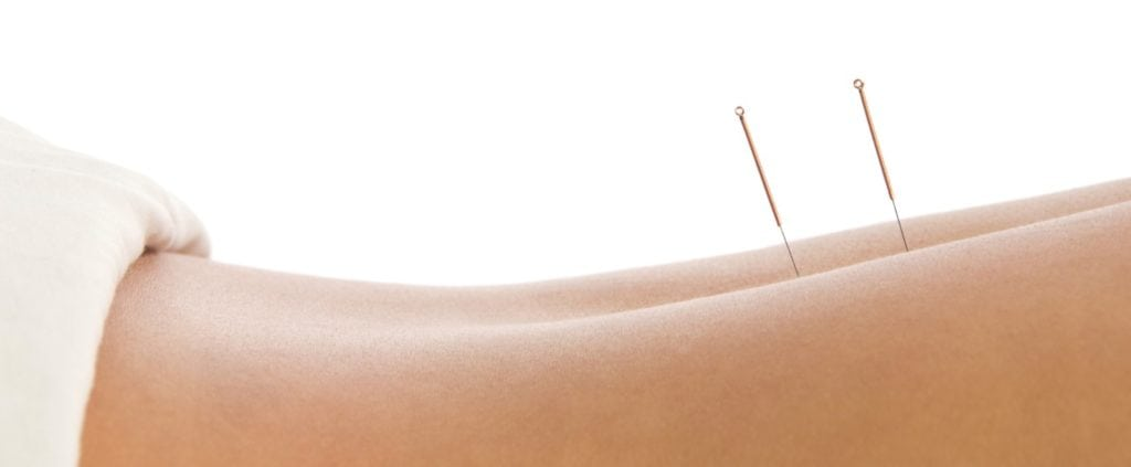 The best acupuncturists in Sydney, acupuncture needles at west street wellbeing